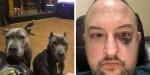 Cachorrinhas Pit Bulls salvam vida de proprietário durante tentativa de assalto por 4 bandidos