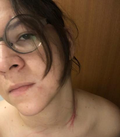 A advogada sofreu leves ferimentos no joelho e pescoço. (Créditos: Arquivo Pessoal/Marina de Oliveira Galvão)